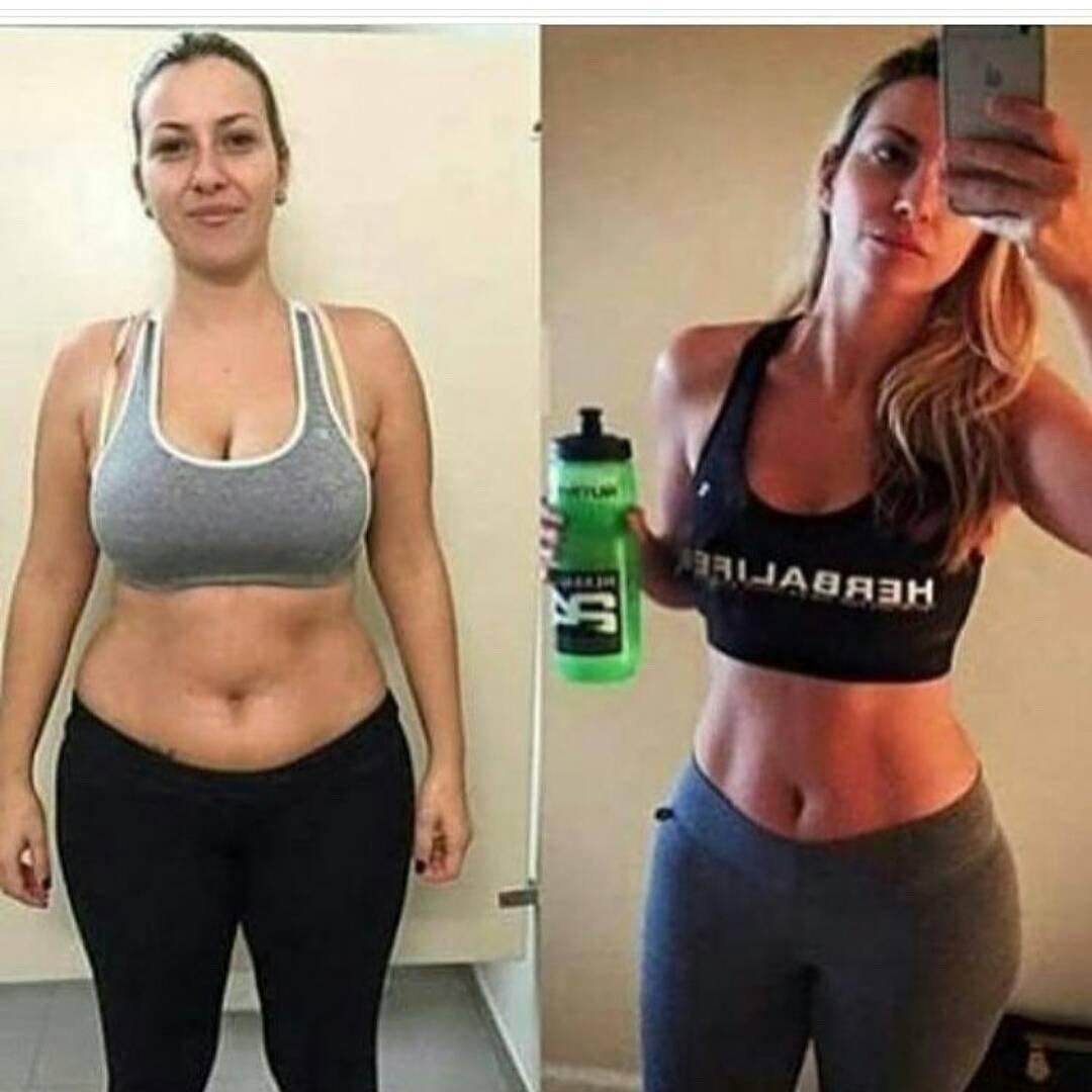 Câtă greutate poți pierde cu liposucția?